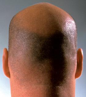 Выпадение Волос После Химической Завивки -