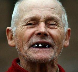 беззубый рот картинки