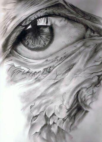 Воспаленные глаза.