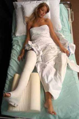 Перелом шейки бедренной кости Сращение таких переломов без операции...