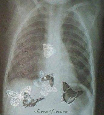картинки бабочки в животе красивые