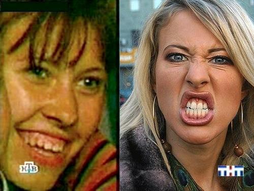 Нагиев до и после пластической операции фото