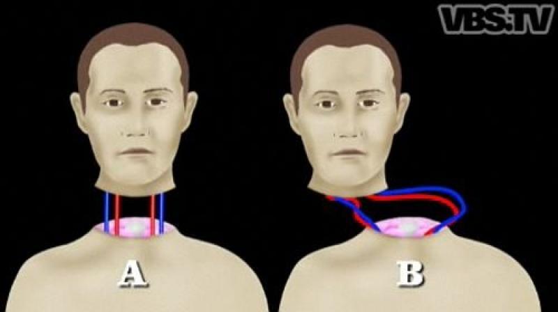 Как сделать пересадку головы