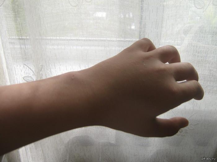 Как сломать палец? 40